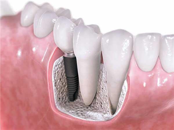Biological dental