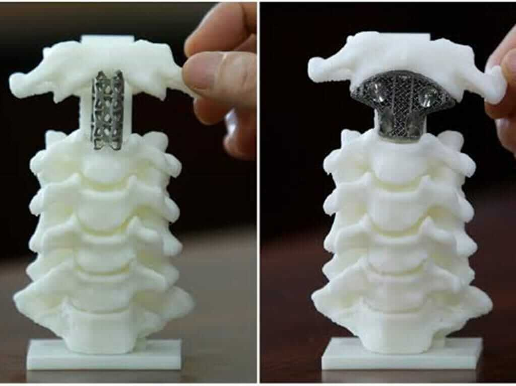 Metal 3D Printer impant
