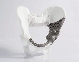 3D printer spinal implants