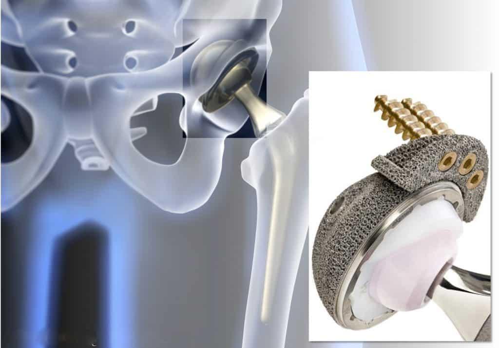 metal 3d printer medical devices