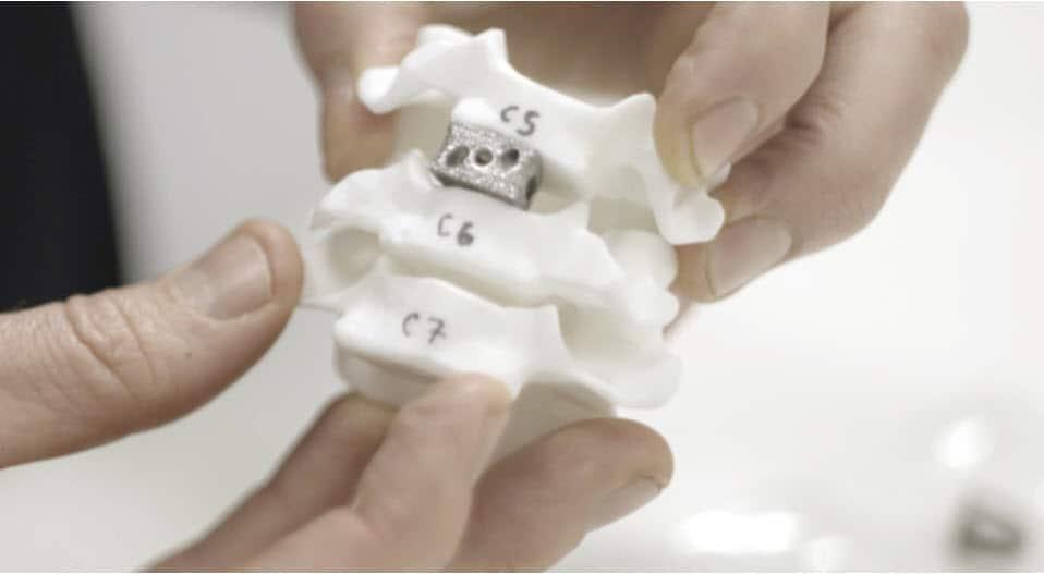 การใช้งานเทคโนโลยี Metal 3D Printing กับงานด้านการแพทย์