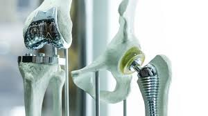 metal 3d printing medical devices